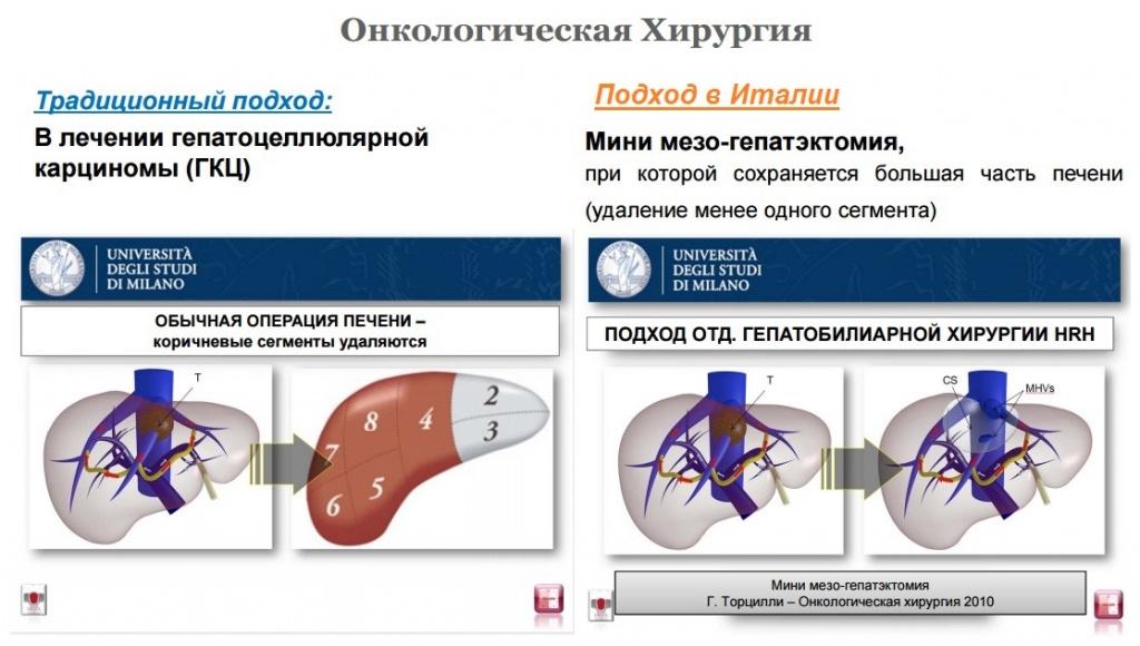 Лечение опухолевых заболеваний